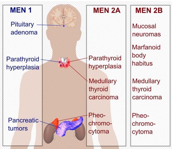 Mnohopočetná endokrinná neoplázia MEN1, MEN2A, MEN2B