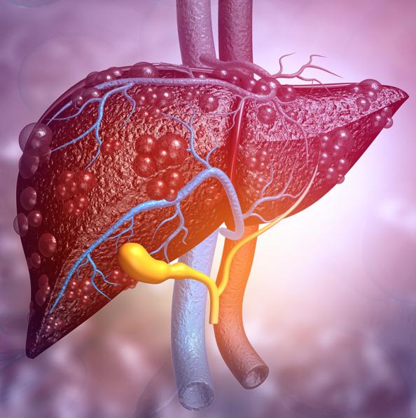 UDCA – bezpečná a účinná liečba pacientov s ochoreniami pečene